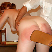 Naked unladylike welted on her huge close by ass - falling apart and bruised buttocks