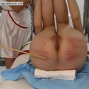 Bottom caning in hospital