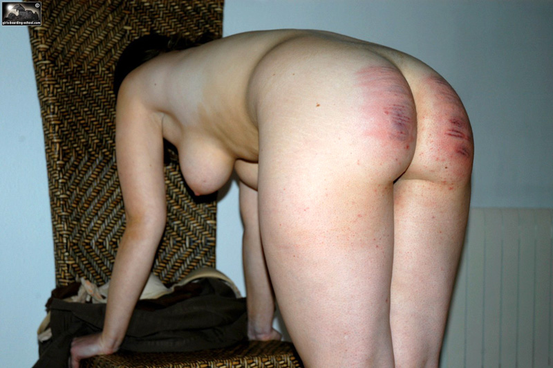 Severe caning pictures