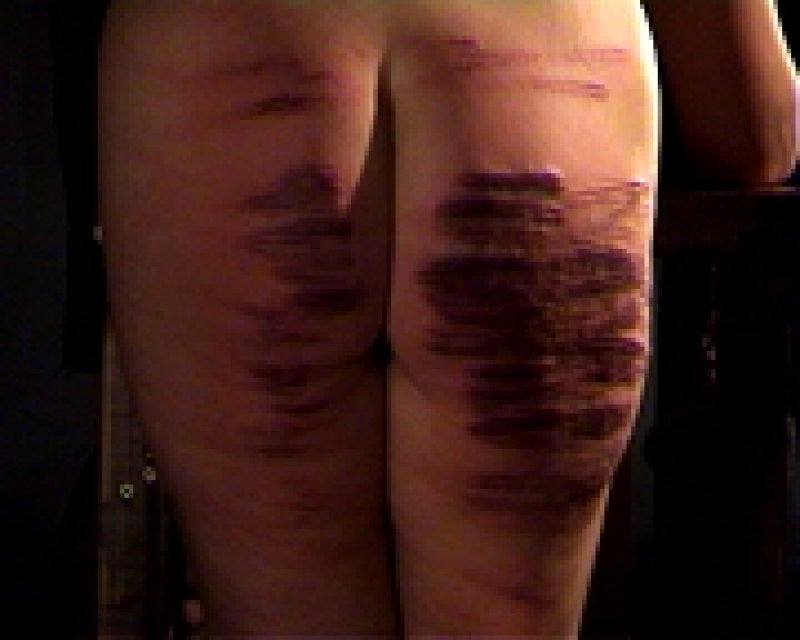 Caning pictures severe